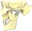 CMD - Probleme des Kiefergelenks