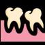 Behandlung von Zahnfleischerkrankungen